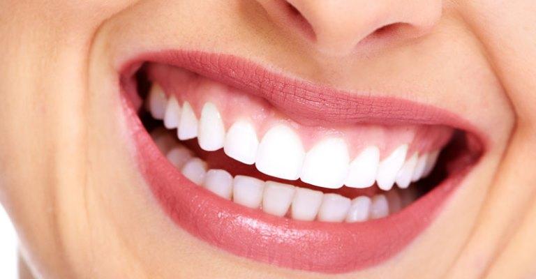 Tire suas dúvidas sobre o clareamento dentário