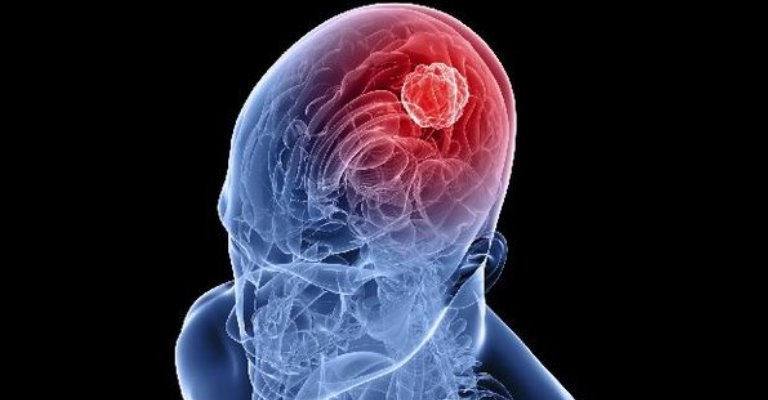 Hemangioma cerebral pode ser similar ao de tumor cerebral