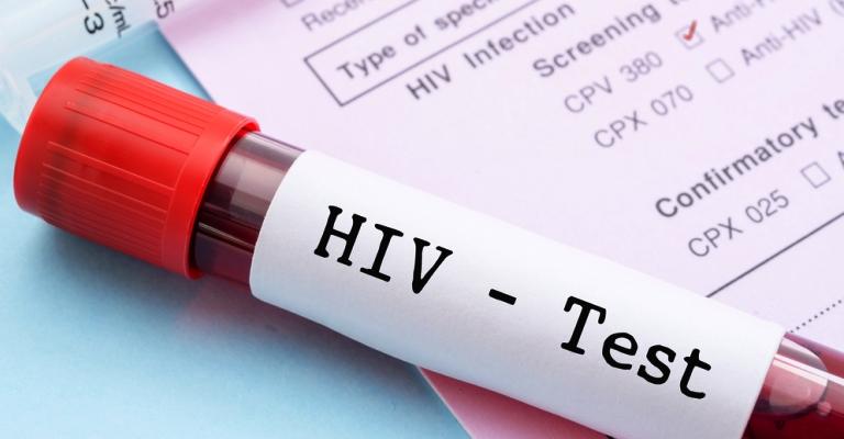 Brasil tem 135 mil pessoas convivendo com HIV que não sabem