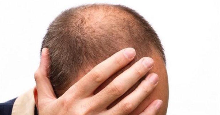 Metade dos homens pode sofrer com a perda do cabelo