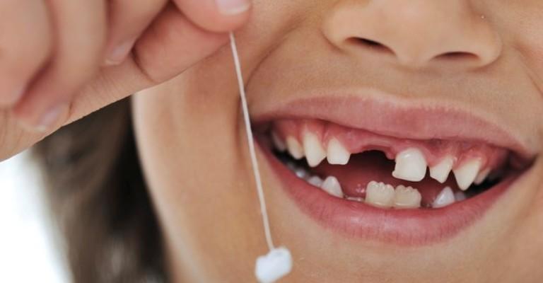 Atenção aos cuidados com os dentes de leite