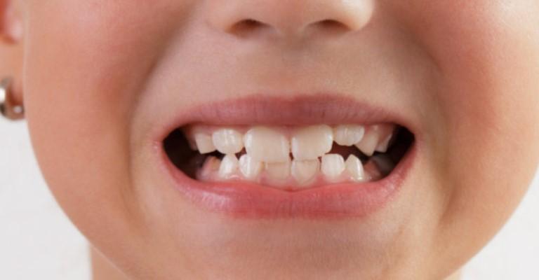 Tratamento dentário em crianças diminui até 89% na pandemia
