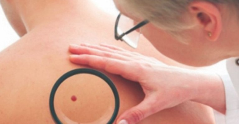 Os principais tipos de manchas na pele
