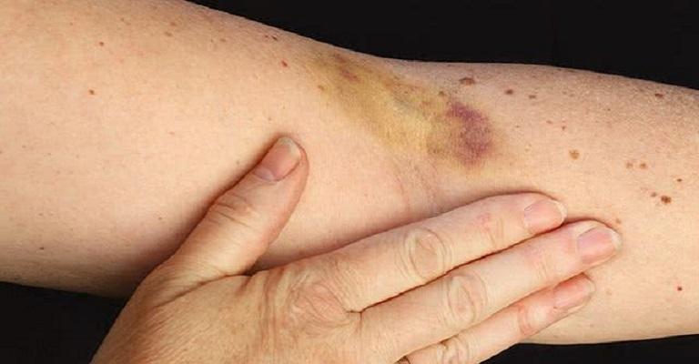 Como tratar hematomas