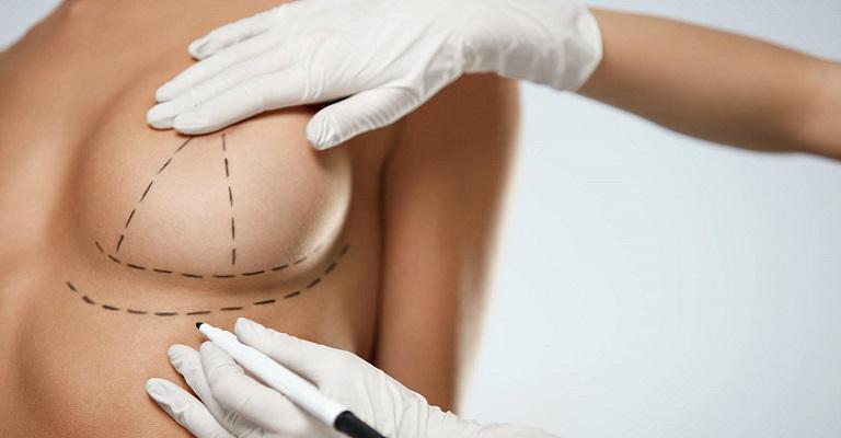 Plástica mamária: quando a cirurgia é questão de saúde