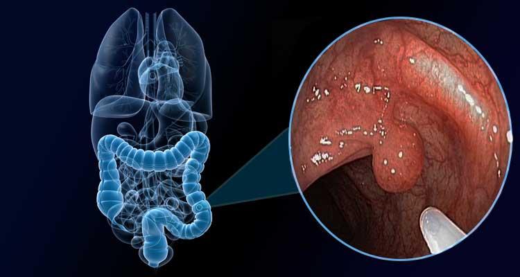 O que são pólipos? E por que eles merecem nossa atenção?